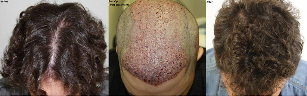 diffuse male hair loss