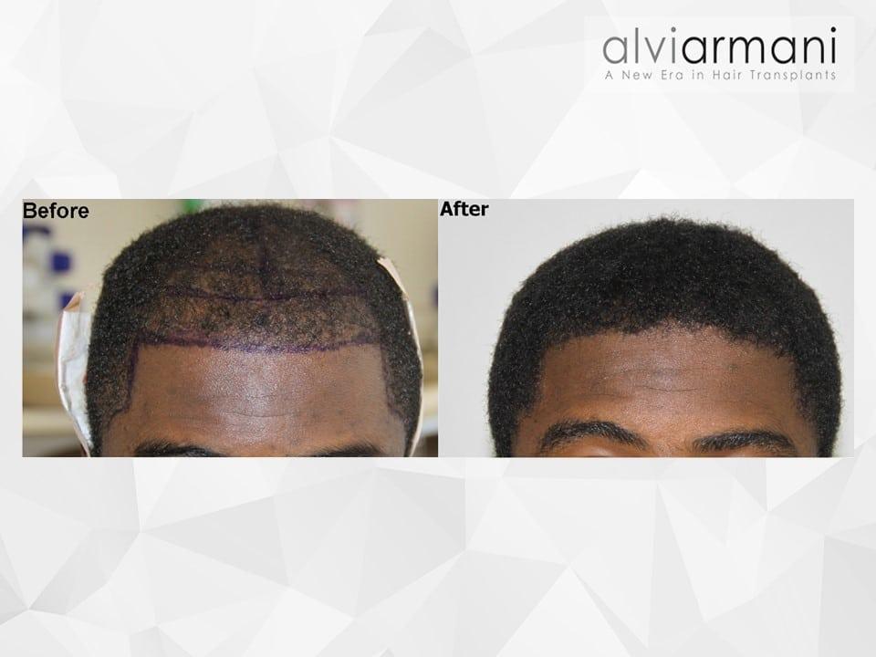AfricanAmericanFUE-Hair-Transplant